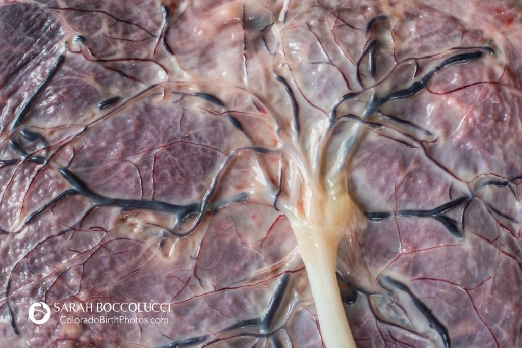 Sage Birth and Wellness Collective - Placenta Encapsulation